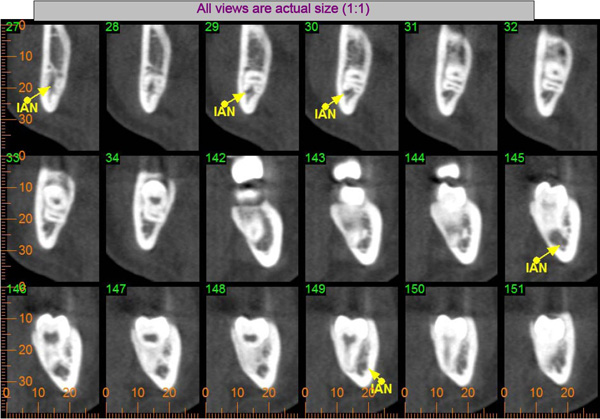 extraction of impacted tooth image 2