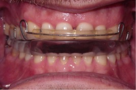 Occlusal bite splint